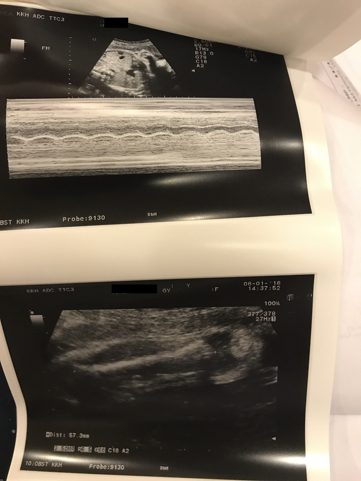 Leg length and the heartbeat is normal!